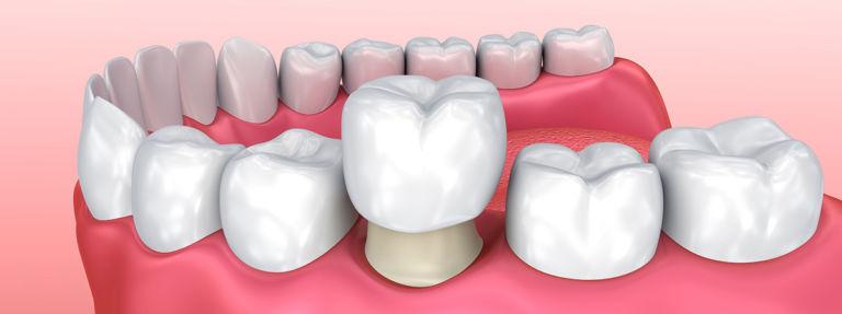 Протезирование зубов. Виды протезов